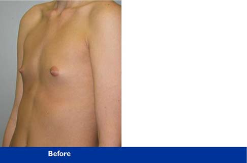 breast augmentation photo of Beverly Hills patient of Dr Krieger