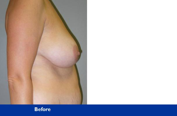 breast lift before and after photo of patient from beverly hills