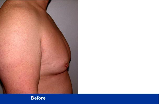 male chest surgery before and after photo