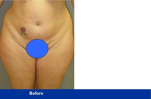 liposuction Beverly Hills - Los Angeles