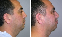 Chin Rejuvenation Photos