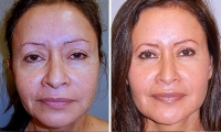 Eyelid Lift Before and After