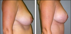 Breast Reduction Before and After