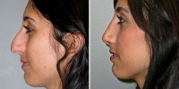Rhinoplasty Patient