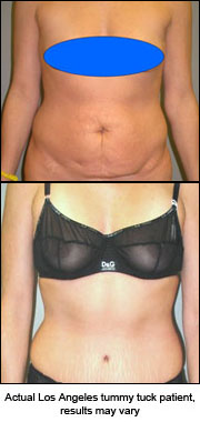Tummy tuck preperation